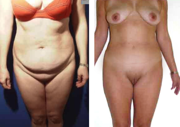 Abdominoplasty before - after, Dr Bellity